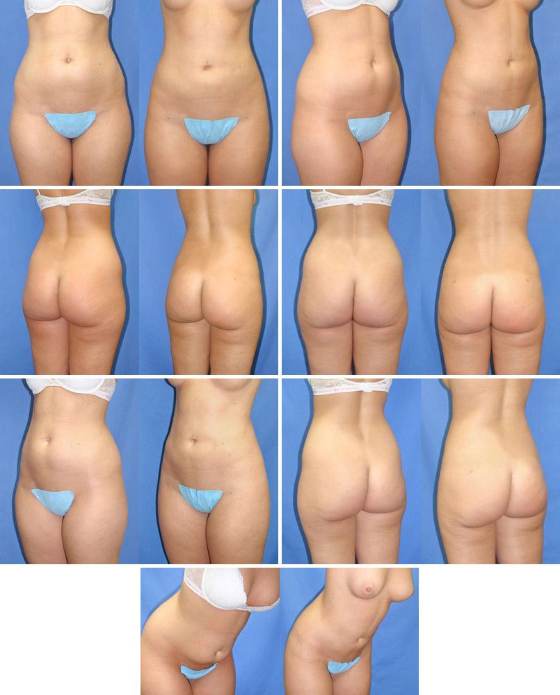 liposuction-surgery-michigan